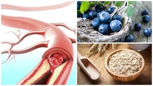 9 voedingsmiddelen voor gezonde slagaderen