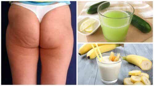 Verminder cellulitis met deze 6 natuurlijke alternatieven