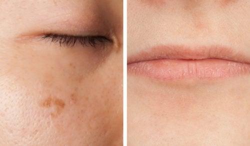 5 manieren waarop je gezicht waarschuwt als je een vitaminedeficiëntie hebt