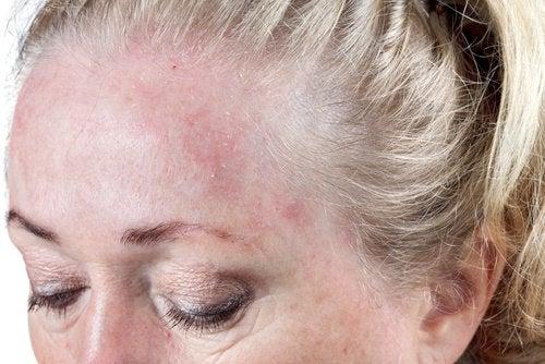 Nat haar en huidinfecties