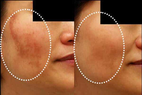 Verminder verkleuring van de huid met 5 zelfgemaakte maskers