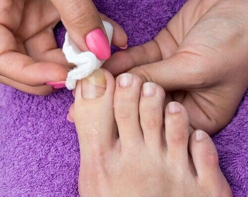 Ingegroeide nagels behandelen met een watje