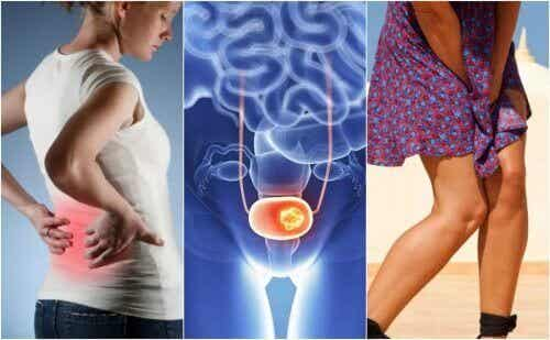 7 symptomen van blaaskanker waar je op moet letten
