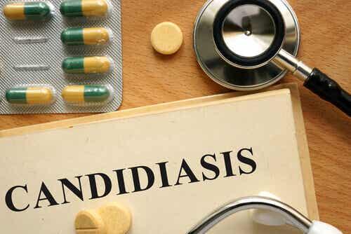 De behandeling van candidiasis : een aantal essentiële aandachtspunten