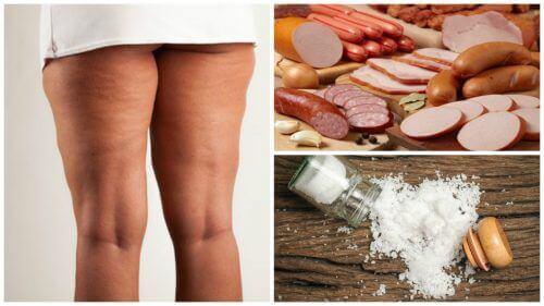 Cellulitis voorkomen: vermijd deze 7 voedingsmiddelen