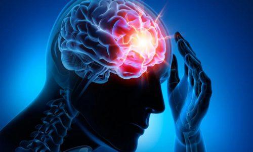 De vier meest voorkomende cerebrovasculaire aandoeningen