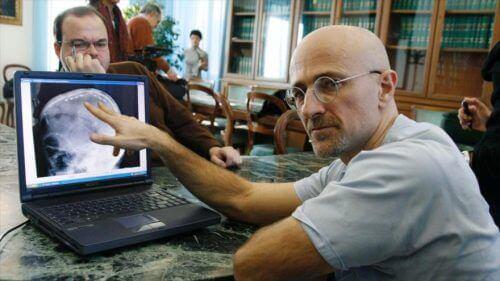 Hoofdtransplantatie een ongekende uitdaging voor de wetenschap