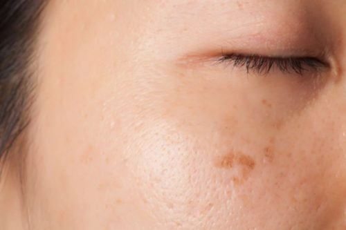 Veranderingen van de huid en het optreden van vlekjes