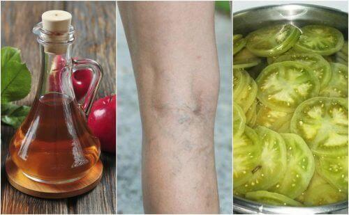 Spataderen bestrijden met deze remedie van appelazijn en groene tomaten