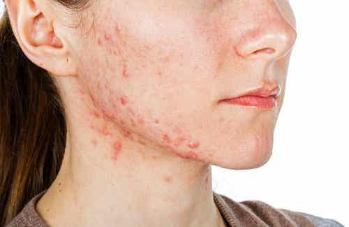 6 ingrediënten die acne van binnenuit behandelen