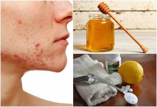 6 natuurlijke remedies voor cystische acne