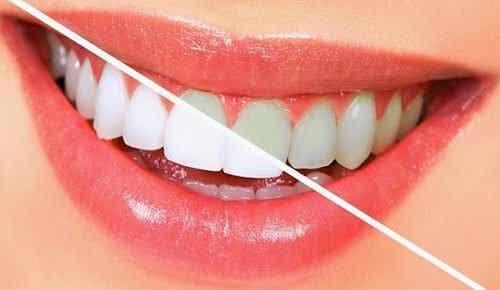 Wittere tanden op een natuurlijke manier met 10 voedingsmiddelen