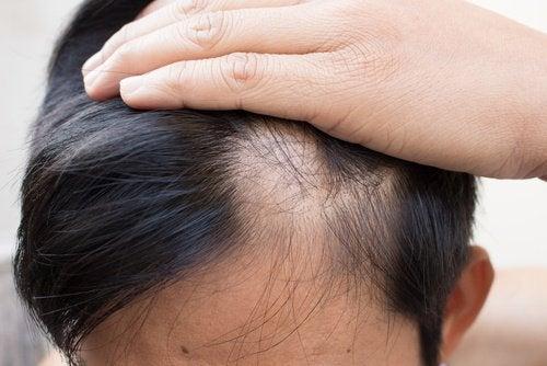 6 natuurlijke behandelingen die kaalheid tegengaan