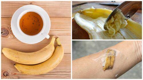 Vijf manieren om bananenschillen te gebruiken als natuurlijk geneesmiddel