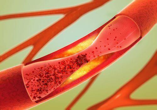 Beroerte voorkomen en je bloedvaten