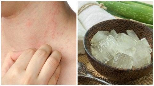 Hoe kan je allergische reacties op warmte verminderen?