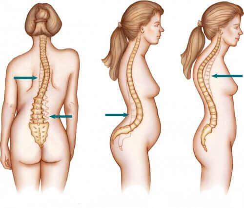 Scoliose beïnvloedt vaker vrouwen