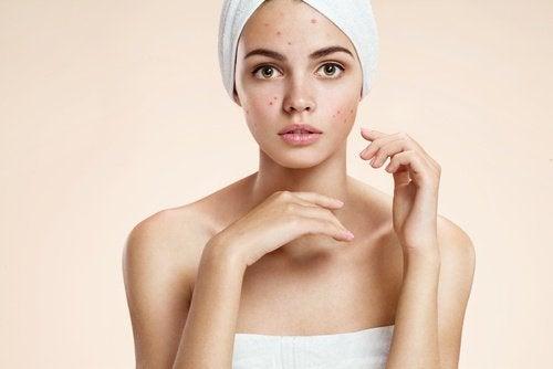 Kaneel en citroen tegen acne