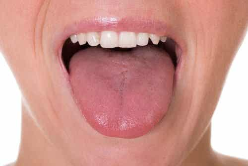 De eerste 5 symptomen van tongkanker