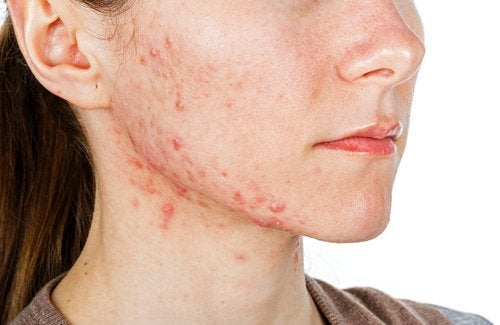 Acne door voedingstekorten