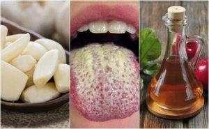 Hoe beheers je Candida Albicans met zes natuurlijke middelen