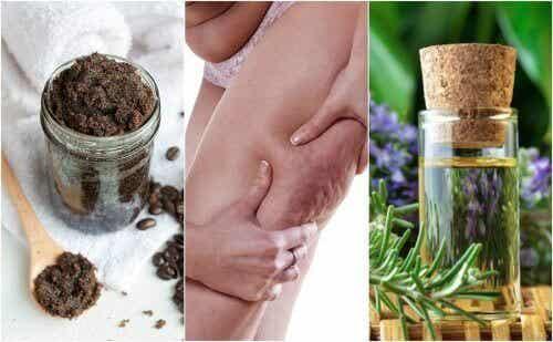 Vijf natuurlijke middelen tegen cellulitis: probeer ze!