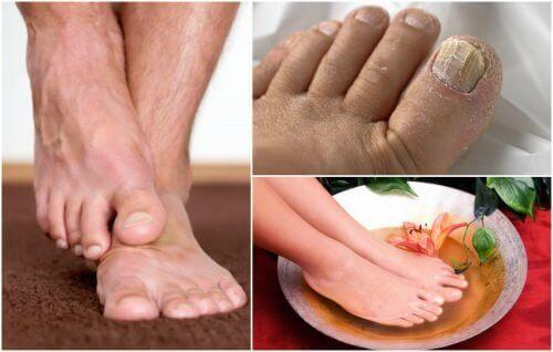De symptomen van voetschimmel: heb jij ze?