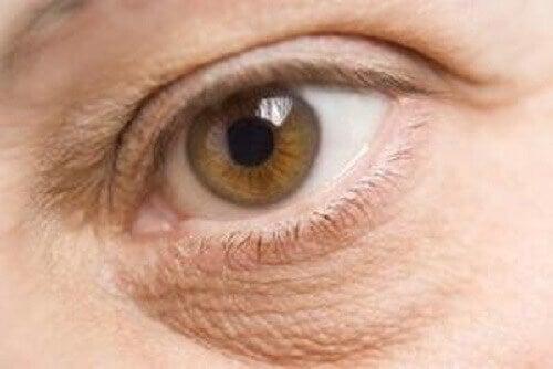Gezwollen ogen door voedingstekorten