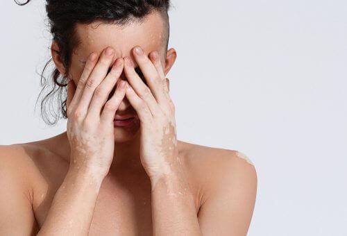 Man die last heeft van vitiligo en daardoor zijn gezicht verbergt
