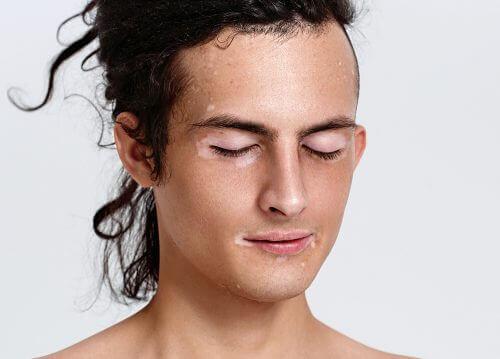 Man met zijn ogen dicht die last heeft van vitiligo