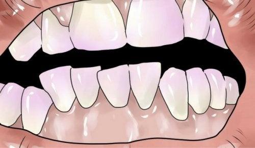 Hoe kun je tandsteen verwijderen op natuurlijke wijze?