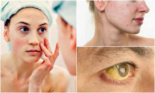 7 tekenen van voedingstekorten in je gezicht