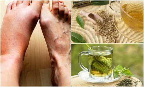 Vijf huismiddelen voor een lager urinezuurgehalte