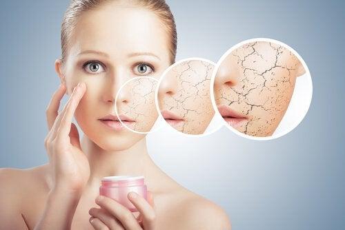 Droge huid verhelpen om de perfecte huid te krijgen