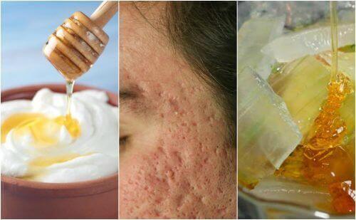 Littekens door acne op je gezicht? Lees over 5 gezichtsmaskers