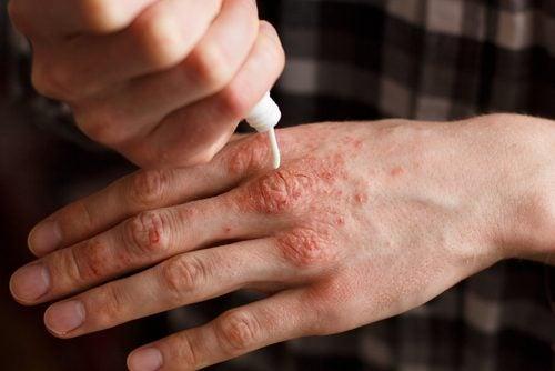 Psoriasis behandelen met 6 natuurlijke crèmes