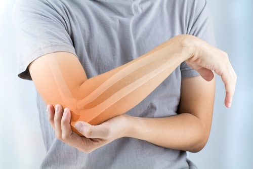 Voorkomen van artrose met deze voedingsmiddelen
