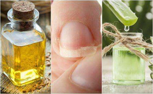 Zwakke nagels repareren: 5 natuurlijke remedies