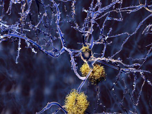 Vormen van dementie naast Alzheimer