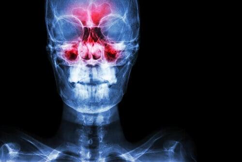 Een röntgenfoto van iemand die last heeft van de symptomen van sinusitis