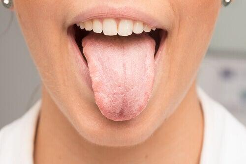 Witte aanslag op de tong zien