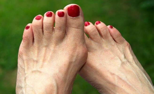 Vrouw met voetproblemen