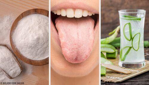 Witte aanslag op de tong kan worden verholpen met acht natuurlijke middelen
