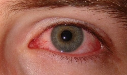 Droge ogen rood oog