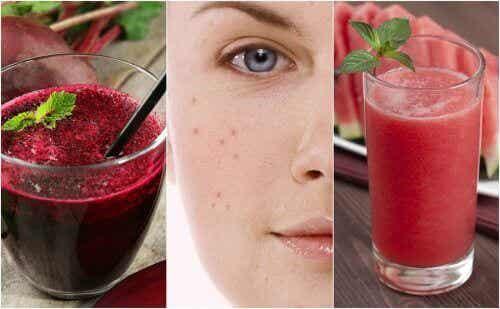 5 ontgiftende smoothies om acne te bestrijden