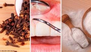 Pak tandvleesontstekingen aan met deze natuurlijke remedies