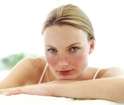 Wat is SLE oftewel Systematische Lupus Erythematosus?