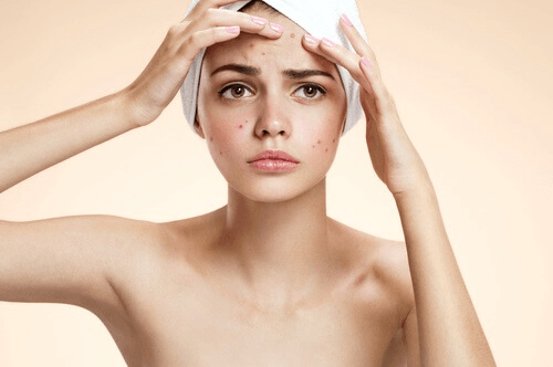 Schoonheidsbehandelingen met tomaat om acne te bestrijden