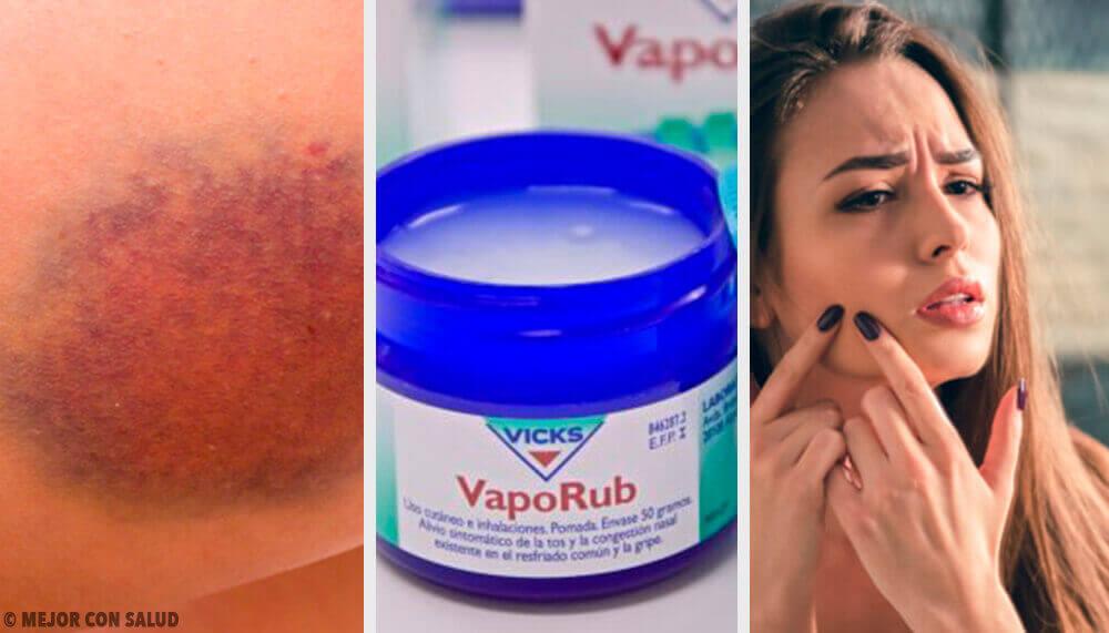 Elf verrassende manieren om de beroemde Vicks VapoRub te gebruiken
