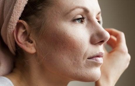 Huidproblemen door een hoog cortisolpeil